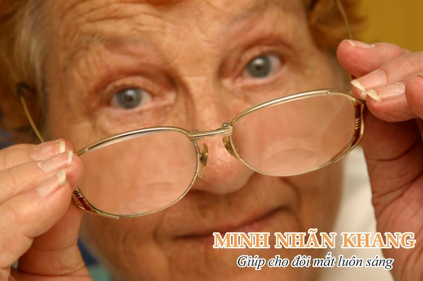 Thoái hóa điểm vàng làm giảm thị lực nghiêm trọng ở người cao tuổi